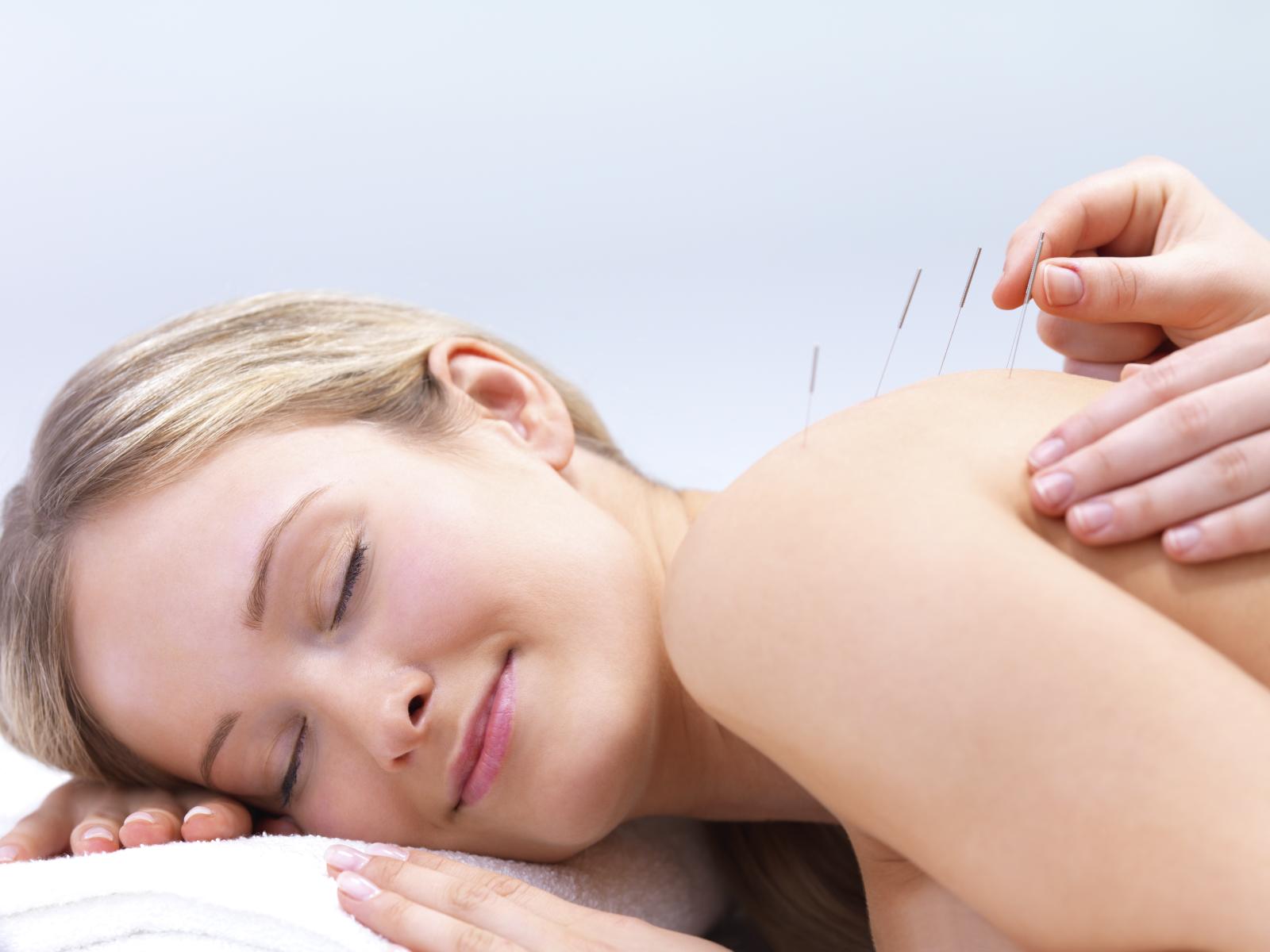 Acupuncture needles for backache