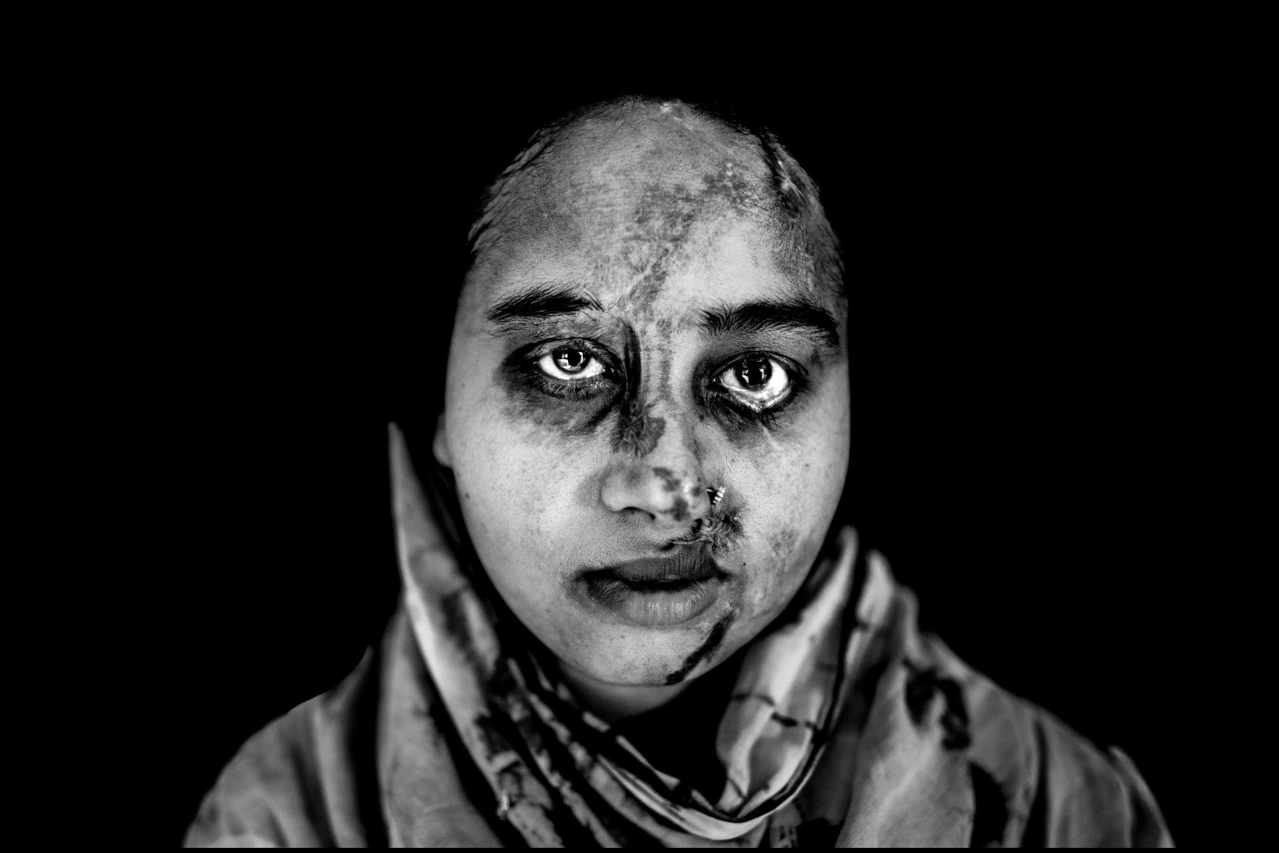Victims of Acid Attack