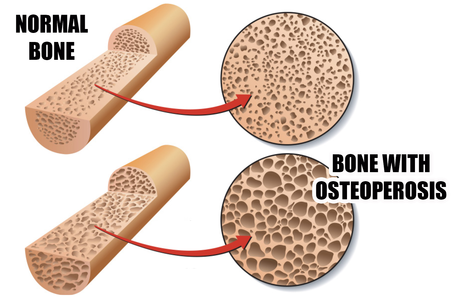 osteoperosis and the normal bones