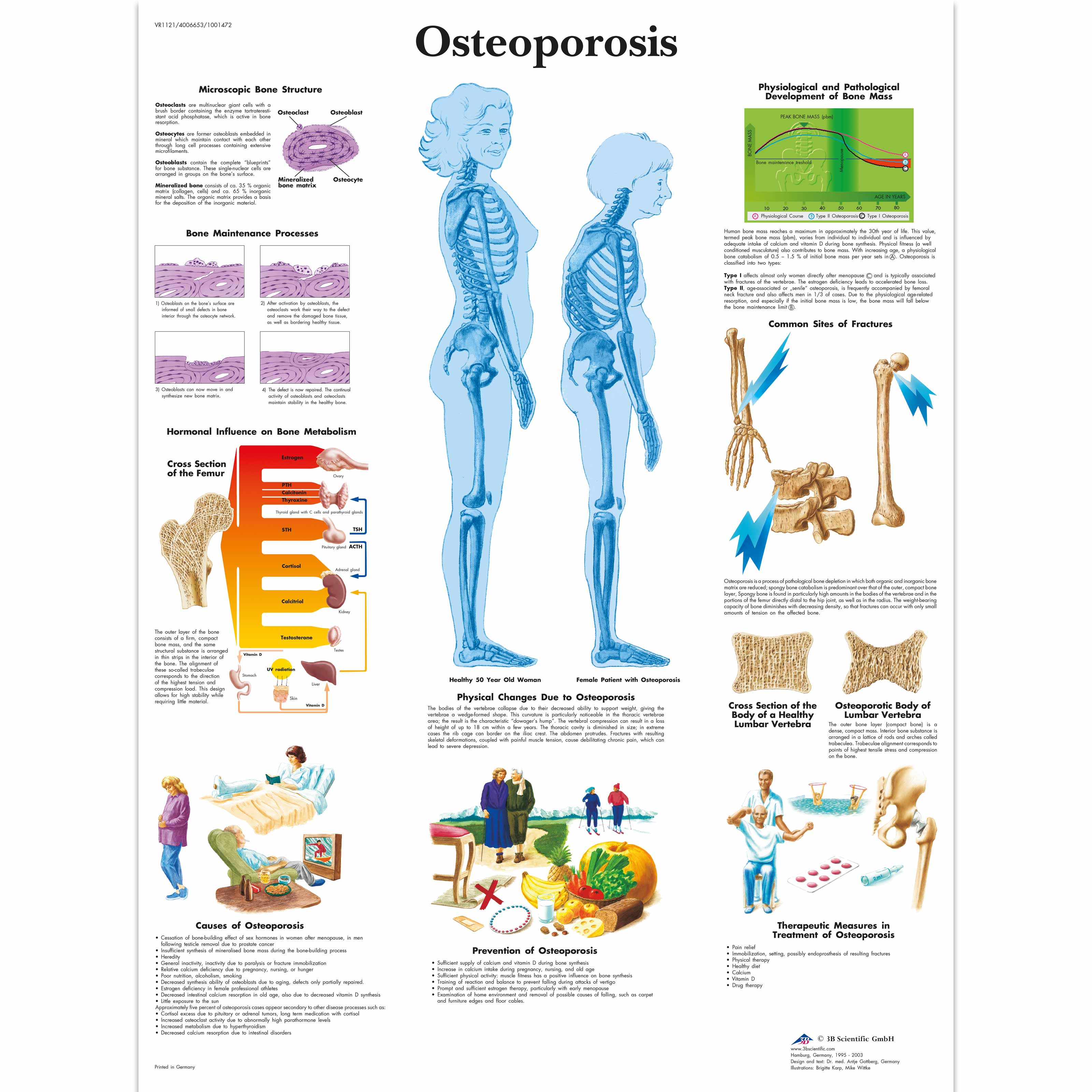 The Osteoporosis chart