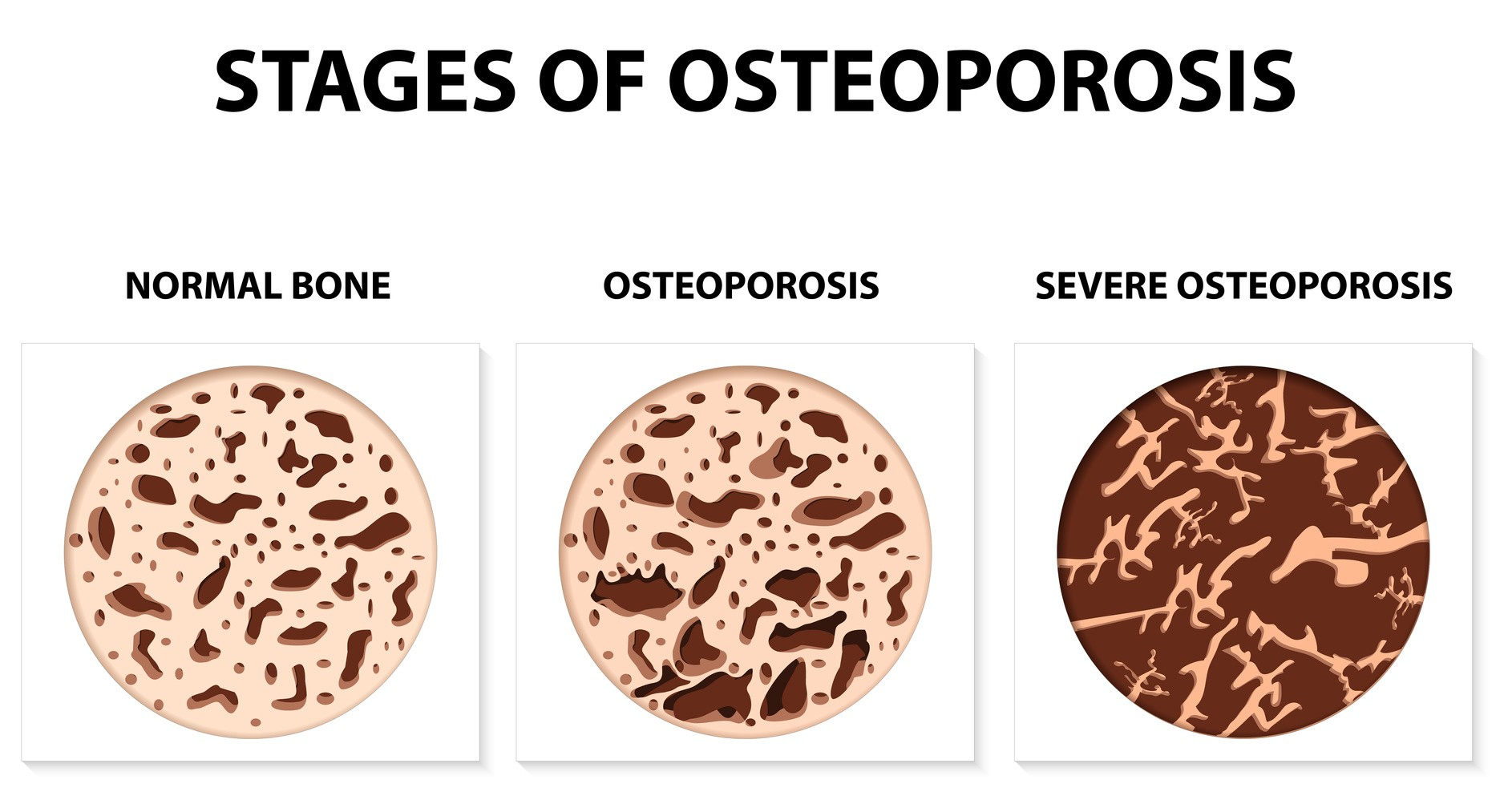 different-stages-of-osteoporosis