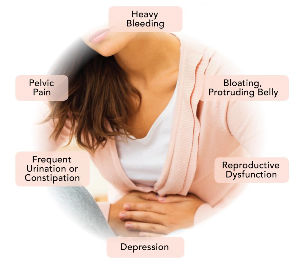 fibroids-symptoms