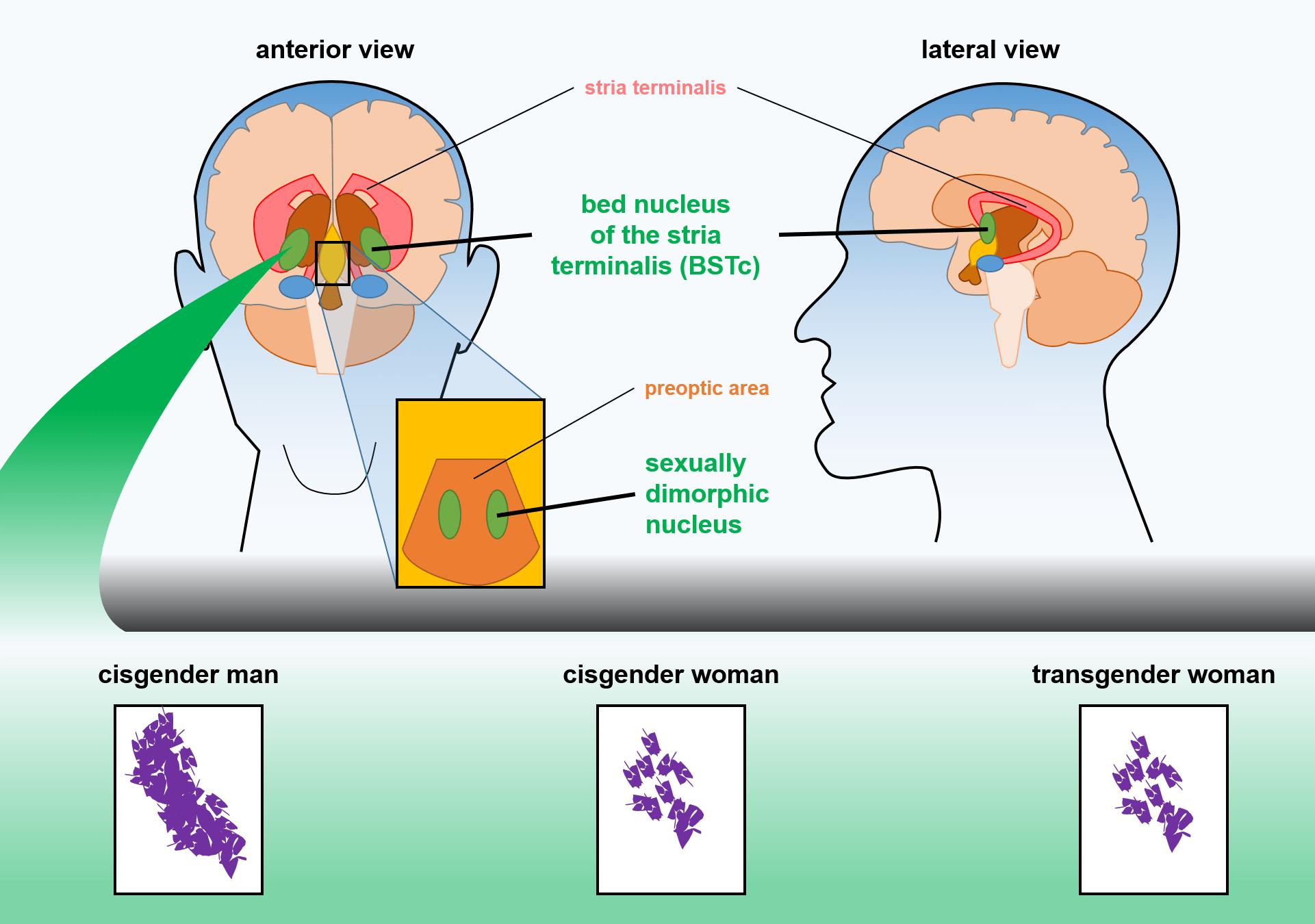 trans people brain